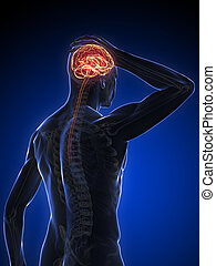 3d headache illustration - 3d rendered illustration of a...