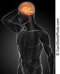 3d headache illustration