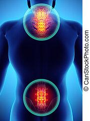 3D Illustration of sacral and cervical painful.