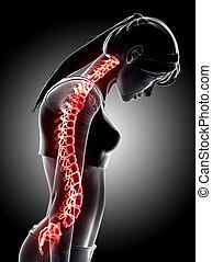3D Illustration of sacral and cervical painful. - 3D...