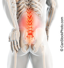 3D Illustration of sacral spine painful. - 3D Illustration...