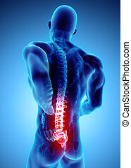 3D Illustration of sacral spine painful.