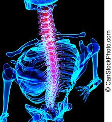 3D Illustration of spine painful.