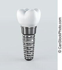 3D illustration of tooth implant on white background.