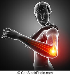 Feeling Elbow pain - 3d Illustration of Women Feeling Elbow...