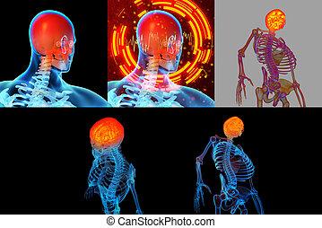 3d, interpretazione, illustrazione, di, doloroso, collo