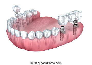 3d lower teeth and dental implant transparent render...