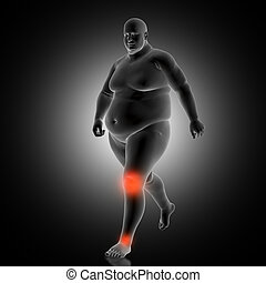 3D medical background with overweight man with knee and ankles highlighted