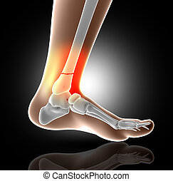 3D medical image showing broken leg bone