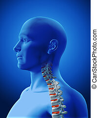 3D medical image showing spine with highlighted discs