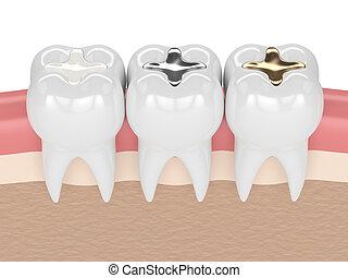 3d, render, de, dents, à, différent, types, de, dentaire,...