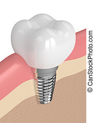 3d render of dental implant in gums
