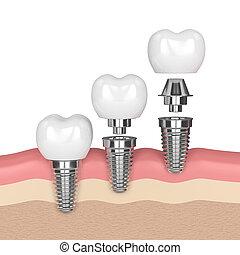 3d render of dental implants in gums over white background