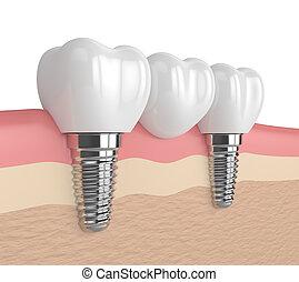3d render of implants in gums supported dental bridge