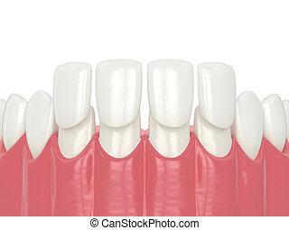 3d render of lower jaw with veneers