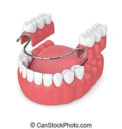3d render of removable partial denture