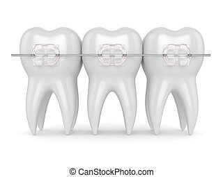 3d render of teeth with ceramic clear braces