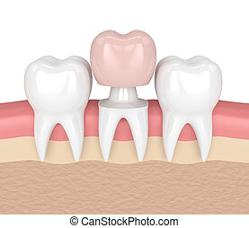 3d render of teeth in gums with dental crown restoration