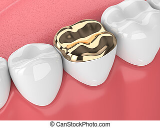 3d render of teeth with dental golden onlay filling in gums over white background