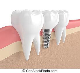 3d render of teeth with dental implant in gums