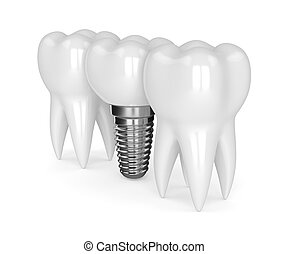 3d render of teeth with dental implant