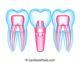 3d render of teeth with dental implant over white