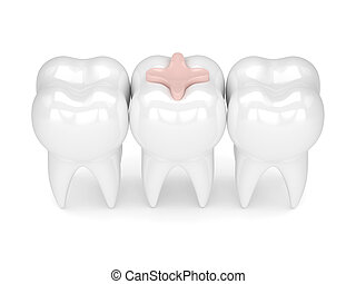 3d render of teeth with dental inlay filling in row over white background