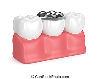 3d render of teeth with dental onlay amalgam filling in gums over white background
