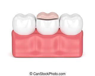 3d render of teeth with dental onlay filling in gums over white background