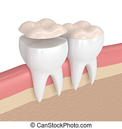 3d render of teeth with dental onlay filling in gums