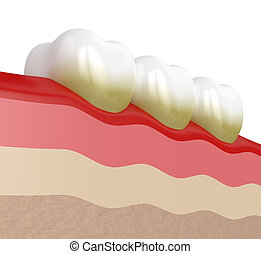 3d render of teeth with plaque and tartar over white...