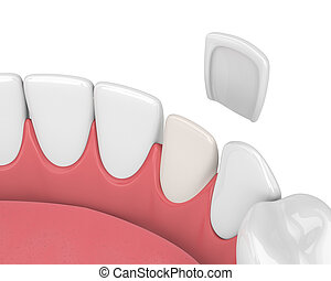 3d render of teeth with veneer