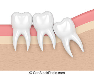 3d render of teeth with wisdom crowding. Concept of...