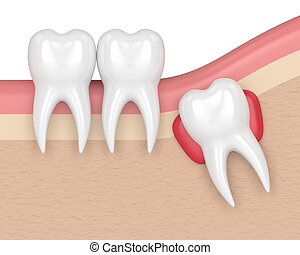 3d render of teeth with wisdom cyst. Concept of different...