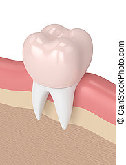 3d render of tooth with dental crown filling in gums