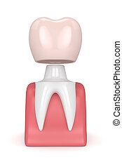 3d render of tooth with dental crown filling in gums over white background