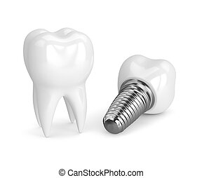 3d render of tooth with dental implant