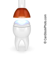 3d render of tooth with dental polymerization lamp and light cured onlay filling over white background