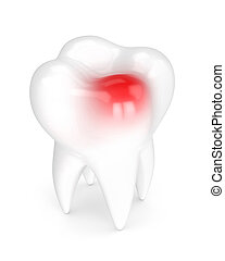 3d render of tooth with toothache over white