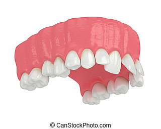 3d render of upper jaw with abnormal teeth position