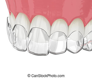 3d render of upper jaw with invisalign removable retainer over white background
