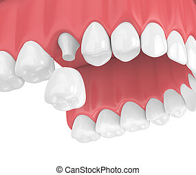3d render of upper jaw with teeth and dental crown restoration over white background