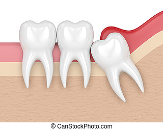 3d render of wisdom mesial impaction with pericoronitis. ...
