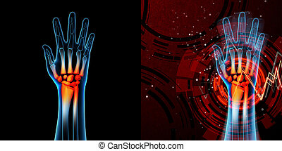 3d rendered anatomy illustration - hand pain