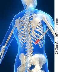 3d rendered illustration of a human skeleton with disc injection