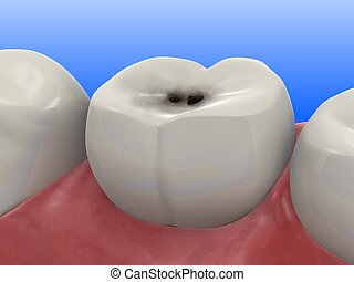 3d rendered illustration of a human tooth with caries