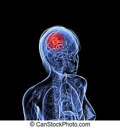 cerebral tumor - 3d rendered illustration of a transparent ...