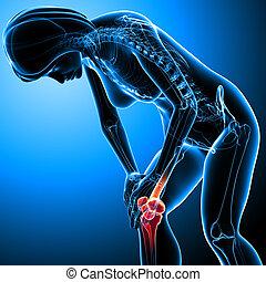Female knee pain anatomy on blue