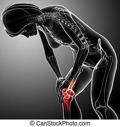 Female knee pain anatomy on gray