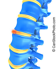 slipped disc - 3d rendered illustration of human spine with ...